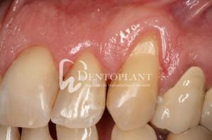 dentoplant-case-5-5-1024x682