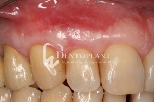 dentoplant-case-5-7-1024x682