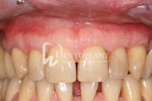 dentoplant-case-5-8-1024x682