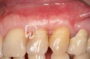 dentoplant-case-5-9-1024x682