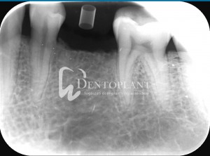 Alveolar socket preservation - Regenerated bone, the extraction site is filled with autologous bone - Dentoplant case