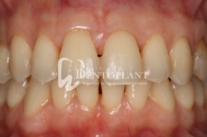 Shifted central incisor due to severe periodontal disease - after - Dentoplant case
