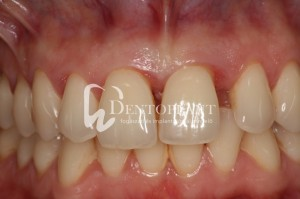 Shifted central incisor due to severe periodontal disease - Initial state with visible shift of the left upper incisor - Dentoplant case