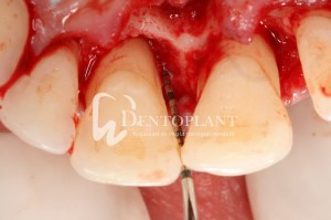 Shifted central incisor due to severe periodontal disease - Surgical exposure reveals destruction of the periodontal structures - Dentoplant case