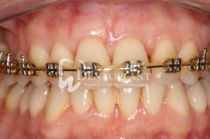 Shifted central incisor due to severe periodontal disease - Initiation of orthodontic treatment 6 months after the intervention as part of the comprehensive treatment plan - Dentoplant case