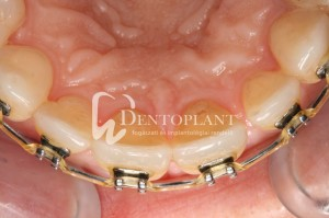 Shifted central incisor due to severe periodontal disease - Restored alignment of the dental arch owing to orthodontic treatment - Dentoplant case