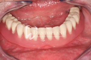 Treatment of edentulousness with implants - The denture - Dentoplant case