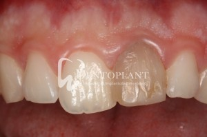 Zirconium crown - Incisor damaged in an earlier sports accident - Dentoplant case