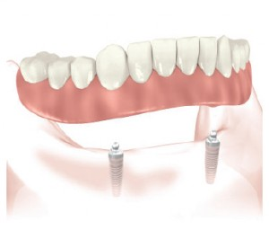 Overdenture secured on attachments (earlier on round ball clips) supported by two implants