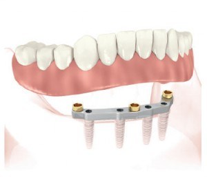 Bridgework secured on a bar supported by four implants