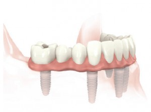 Fixed bonded bridge or fixed screw retained fused-to-metal ceramic bridge supported by five implants
