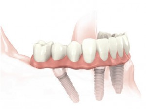 All-on-4™ - by Nobel®, four specially placed implants to support a fixed ceramic bridge