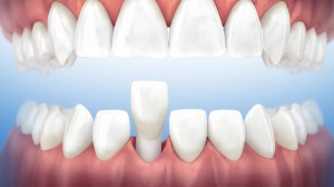 Oral surgery - Extraction