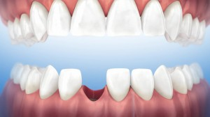Oral surgery - Extraction site