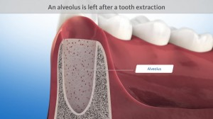 Oral surgery - Cross-sectional view of the extraction site
