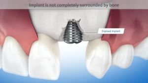 Bone resorption around an implant