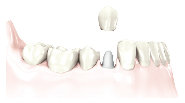 Replacement of a severely damaged crown without missing teeth