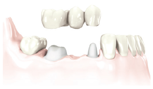 Replacement of a single tooth with bridge