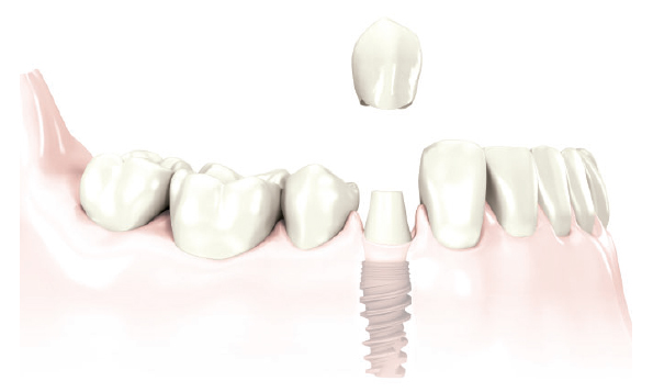 Replacement of a single tooth with implant