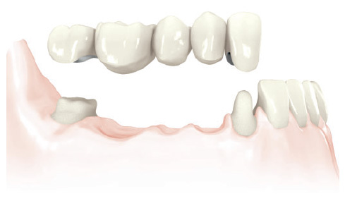 Replacement of more than one tooth with a longer bridge