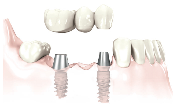 Replacement of more than one tooth with shorter bridge