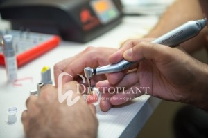 Nobel-Implantologiai-kurzus-Szegeden-Dentoplant