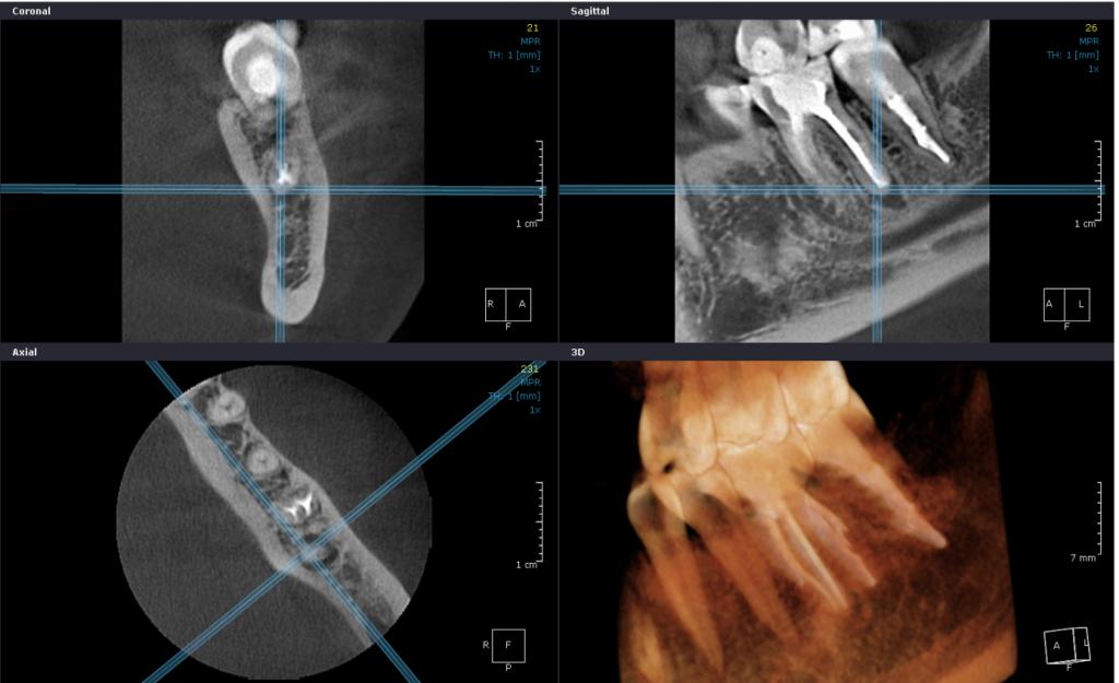 4. korszerű 3D képalkotó diagnosztika a gyökérkezelések pontossága érdekében
