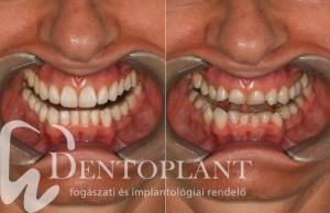 Dentoplant Szeged fogászat smile design