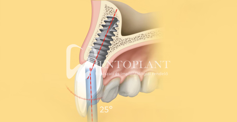 Dentoplant Nobel implantátum Szeged2