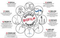 03. Irányított biofilm terápia jobb