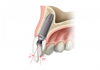 1. Nobel Procera felcsavarozható korona egy foghiány esetén