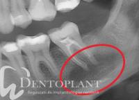 1. Panaszos őrlőfog röntgenfelvétele kiinduláskor-min