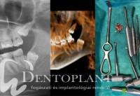 Dentoplant Bölcsességfog Dr. Maráz Kinga-06-min