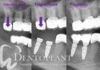 01- Dentoplant fogbeültetés Nobelbiocare On1 Dr. Maráz Kinga
