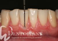 1. Fogágybetegségek dentoplant fogászati és Implant rendelő Szeged
