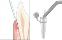 4. Baktérium mintavétel a fogágy tasakokból