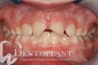 Dentoplant fog trauma fogászat Szeged_03