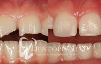 Dentoplant gyerekfogaszatszeged (1)_04