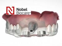 2. Nobel Guide sebészi sablon másolat