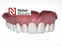 6. implantatumos fogpotlas Dentoplant Szeged másolat