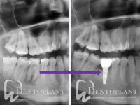 3._Dentoplant_Fogaszati_els_Implantologiai_Rendelo_dr._Maraz_Kinga