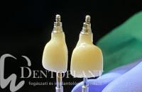 3.Procera egyedi implantátum felépítmény másolat-min